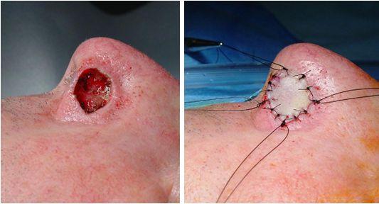 tumori maligne