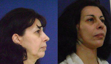 lifting facial cu fire de suspensie caz 2