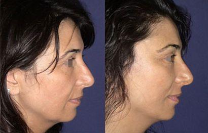 lifting facial cu fire de suspensie caz 4