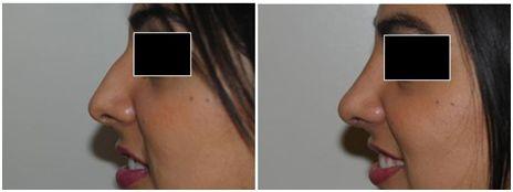 rinoplastie operatie estetica 2