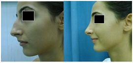 rinoplastie operatie estetica